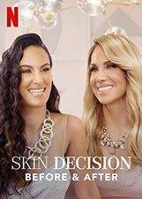 Skin Decision: Before and After